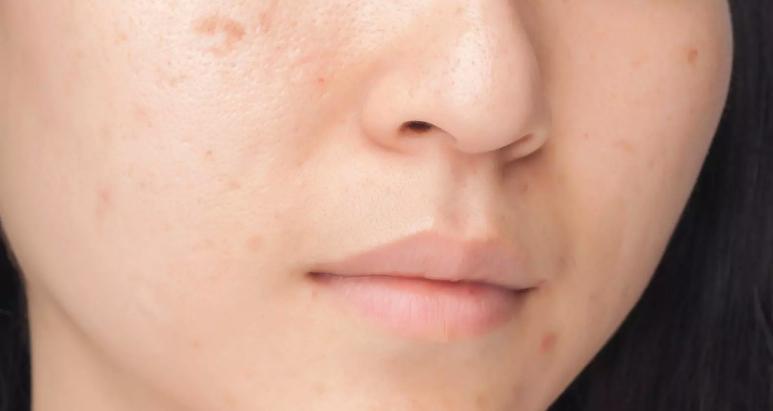 Cicatrices d'acné - Causes et solutions | EUCERIN