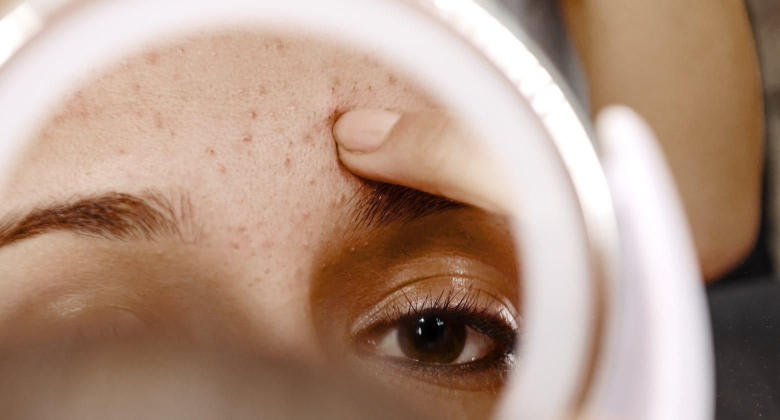 c7389d33cf4 L acné se présente sous différents types et différentes formes