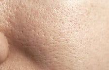Visage d'une femme à la peau grasse