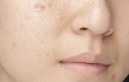 Visage d'une femme à la peau grasse et à imperfections