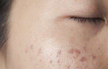 eucerin propos de la peau hyperpigmentation caus e par une inflammation. Black Bedroom Furniture Sets. Home Design Ideas