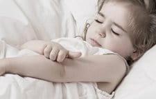 Le gel longuent à atopitcheskom la dermatite