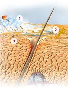 comment traiter le psoriasis du cuir chevelu