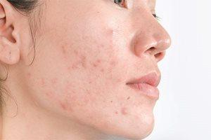 Hyperpigmentation post inflammatoire - Causes et solutions ...